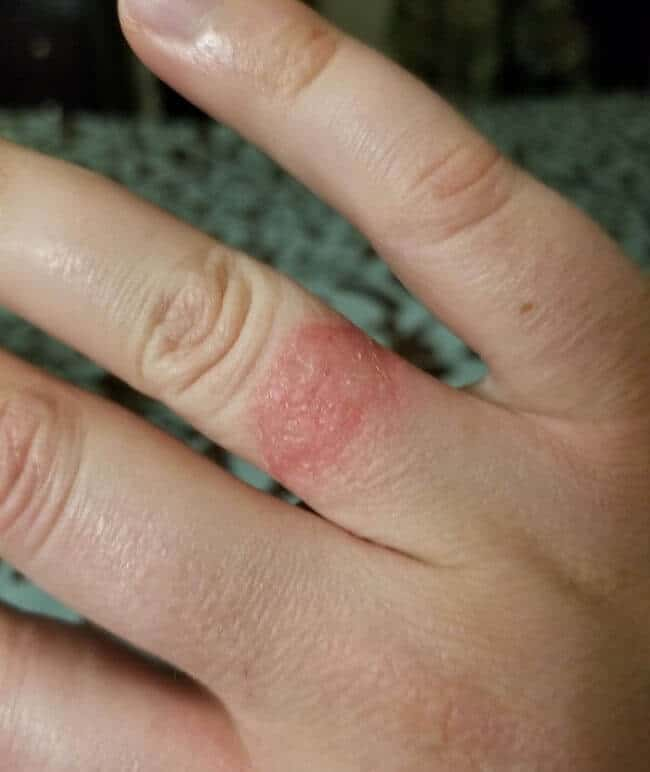 how long does contact dermatitis last