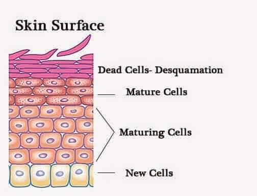 removing dead skin on legs