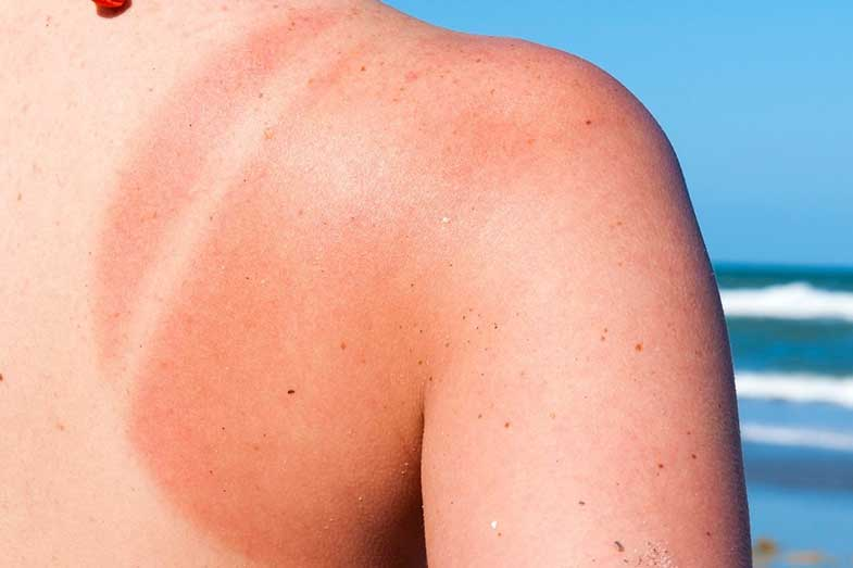 What Does Skin Make When Exposed to Sun?