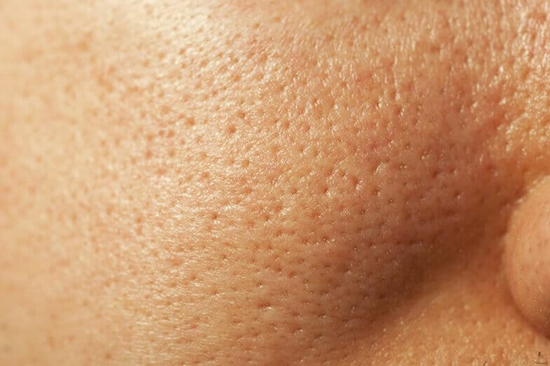 Extremely Large Pores: Causes & How to Minimize