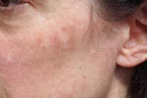 Why Is My Skin Turning Black? 4 Causes