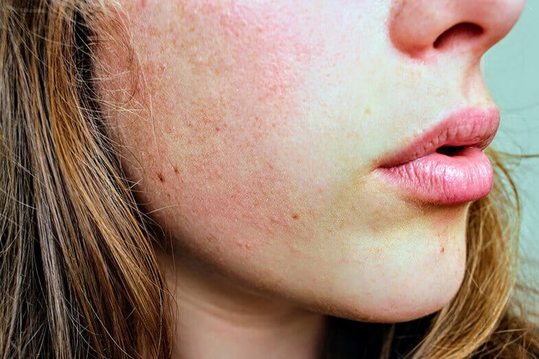 Types of Skin Problems on Face - Top 10 List - Skin Care Geeks
