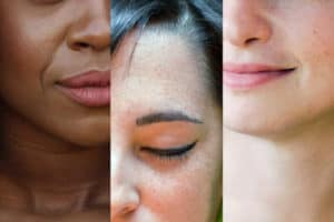 Read more about the article Does Skin Color Affect Body Temperature?