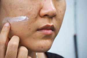 How Long Does It Take for Retinol to Work?