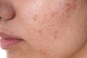 How Long Does Skin Purging Last?