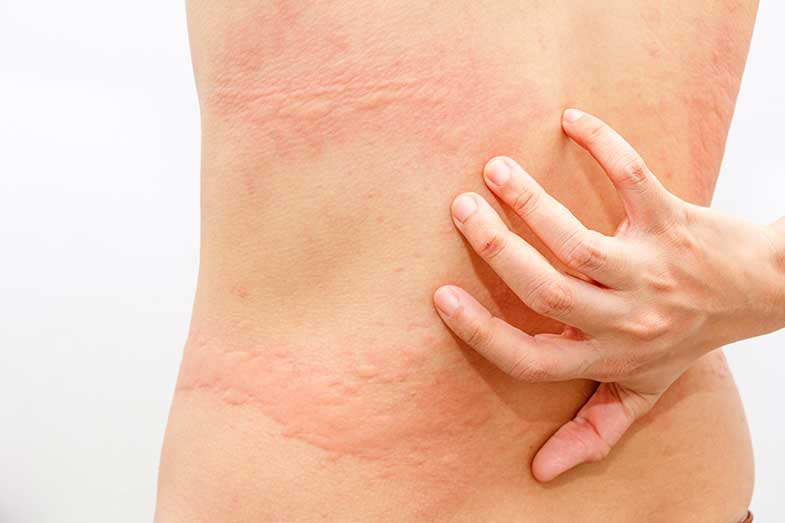 Itchy Bumps on Skin That Come and Go