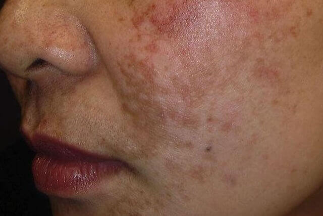 skin getting darker without sun