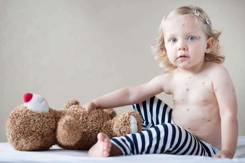 When to Be Concerned About a Rash on a Baby