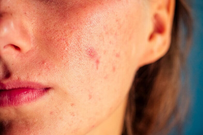 Why Does Acne Take so Long to Heal?