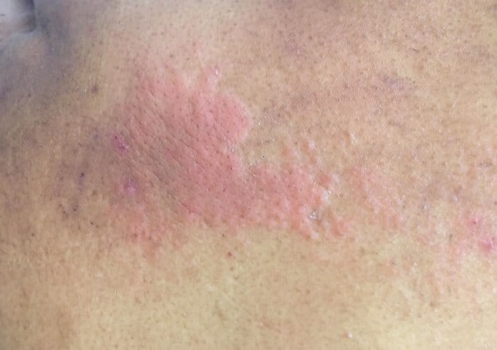 what causes hives at night