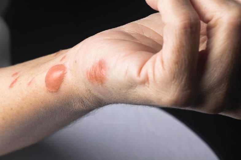 Battery Acid on Skin: Symptoms, Treatments, and Pictures