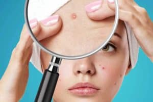 Read more about the article Does Acne Go Away Naturally? Plus 5 Tips