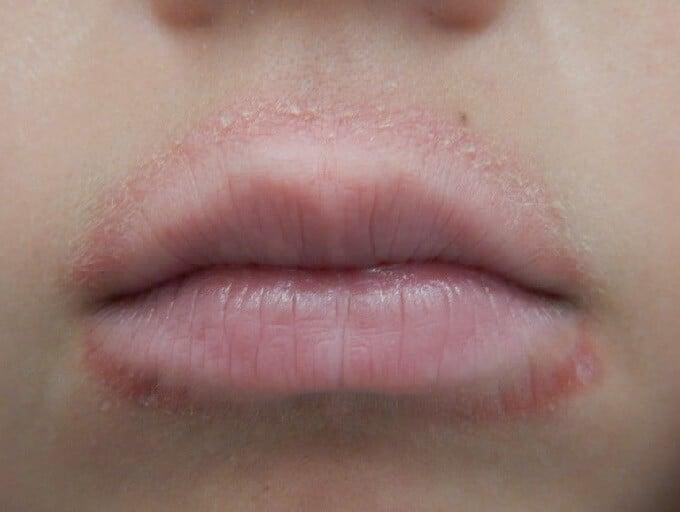 dry skin on upper lip