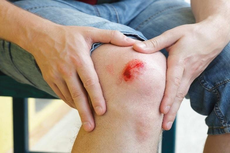 factors that can affect skin healing