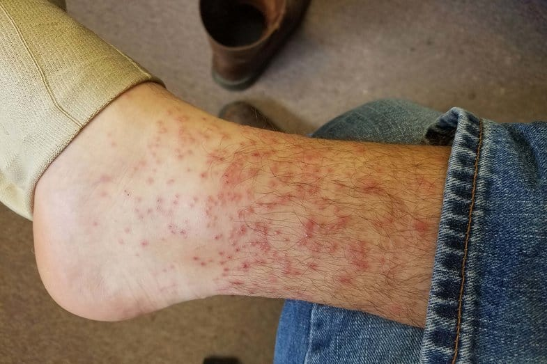 how to get rid of chiggers on skin
