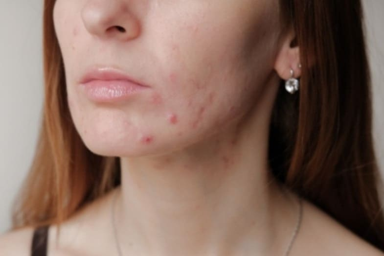 factors that affect the time it takes for pimples to heal