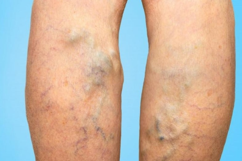 green veins causes and treatments