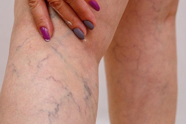 green veins causes