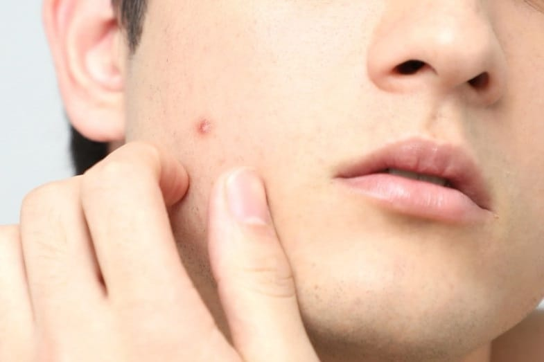 How Long Does It Take for a Pimple to Go Away?