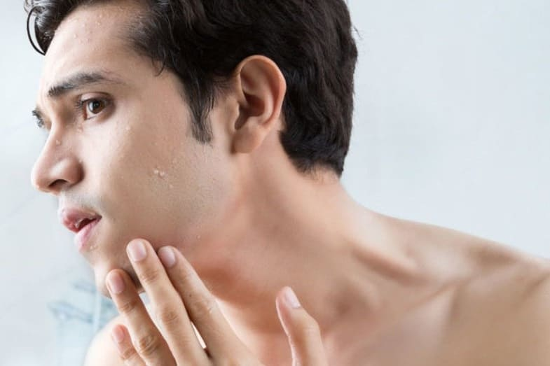 how to take care of skin after skin tag removal