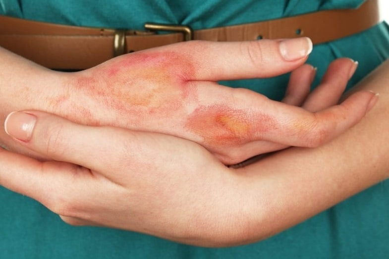 Hydrochloric Acid on Skin: Effects and Treatments