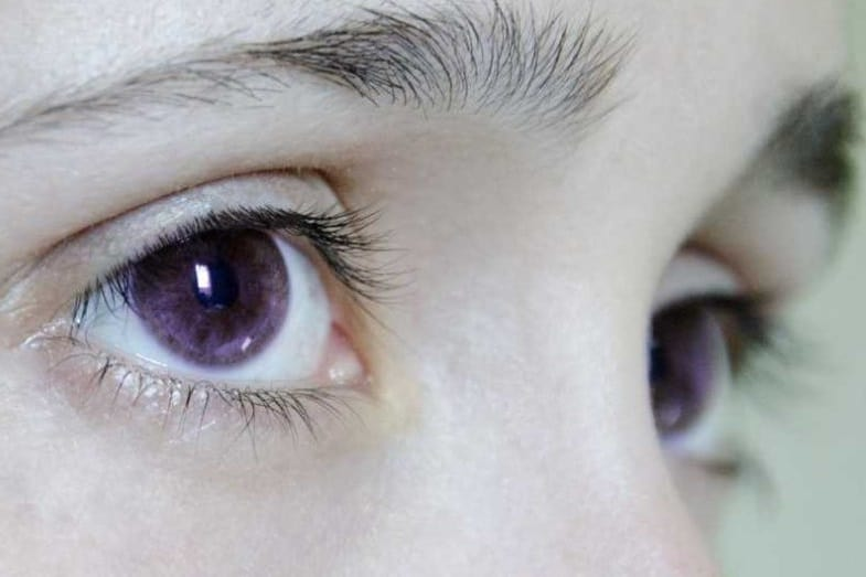 rarest eye color in the world