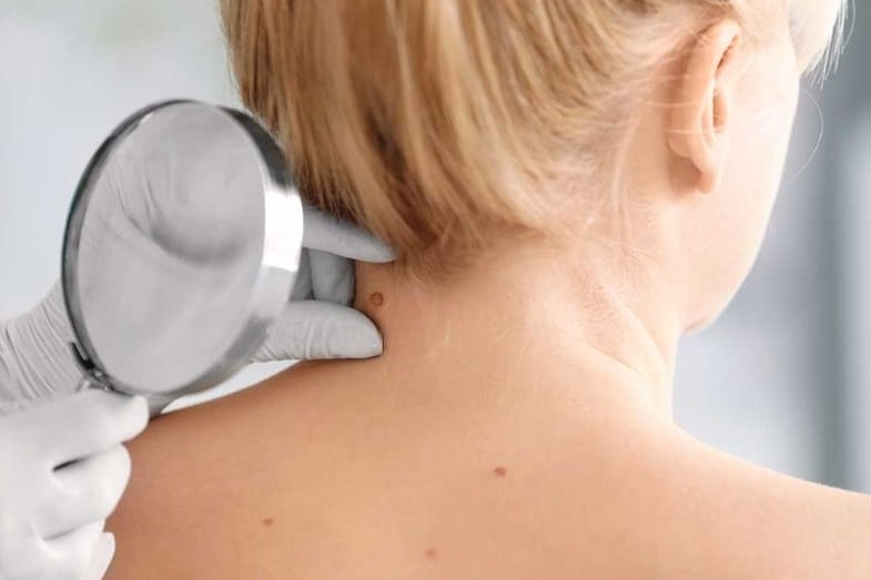 how to get rid of skin tags on neck