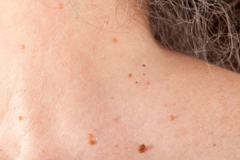 Skin Tags On Neck Causes How To Get Rid Of Them Skin Care Geeks