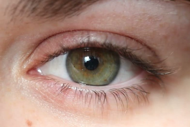What Is the Rarest Eye Color in the World?