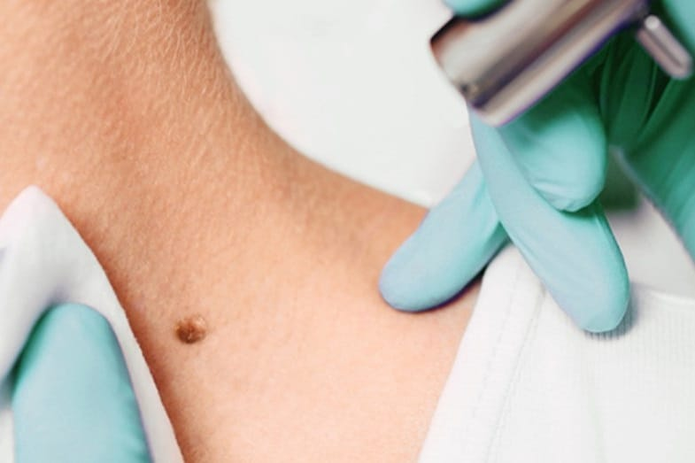 what to expect after freezing a mole