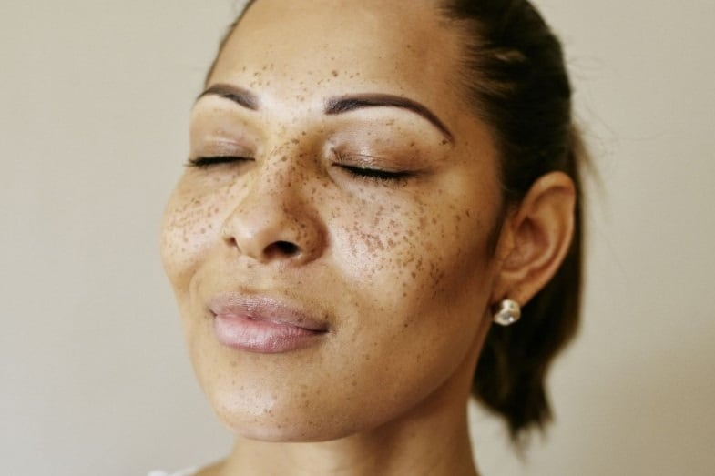 almond skin tone hyperpigmentation