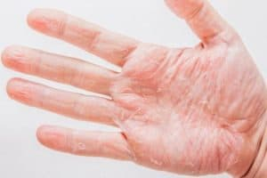 7 Home Remedies for Dry Cracked Hands