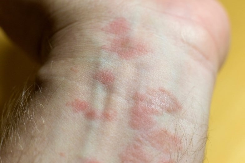 Pink Spots on Skin: Causes and Treatments