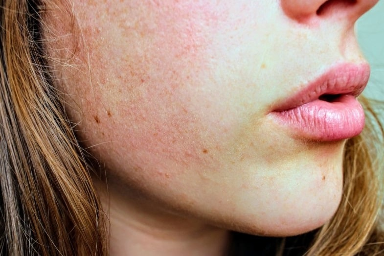Uneven Skin Tone – How to Even It Out? 11 Tips