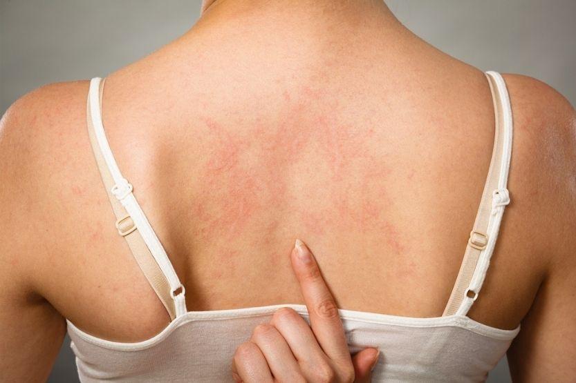 accutane eczema