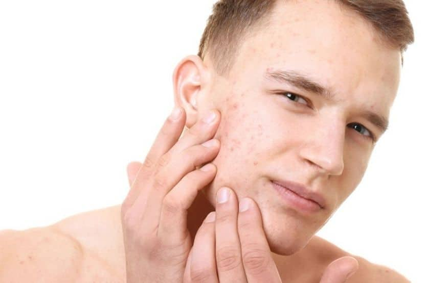 Does Creatine Cause Acne?