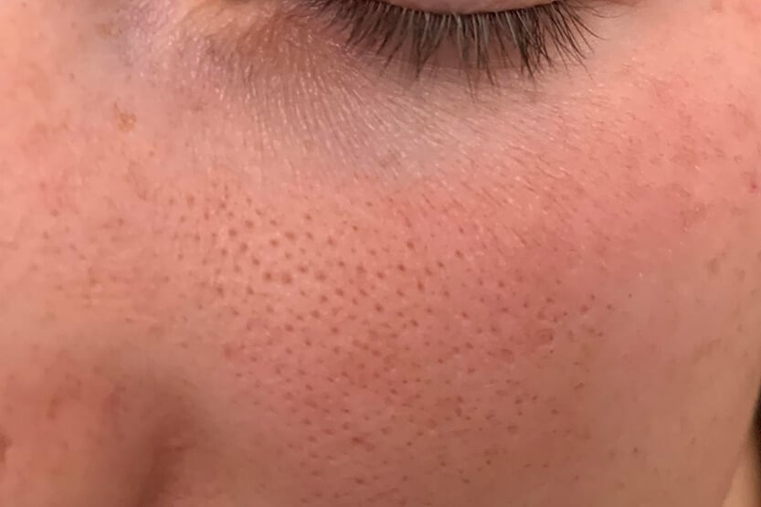 Holes in Face (Pores or Pockmarks) – How to Minimize
