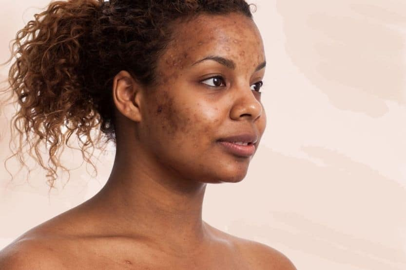 how long does it take for acne scars to fade