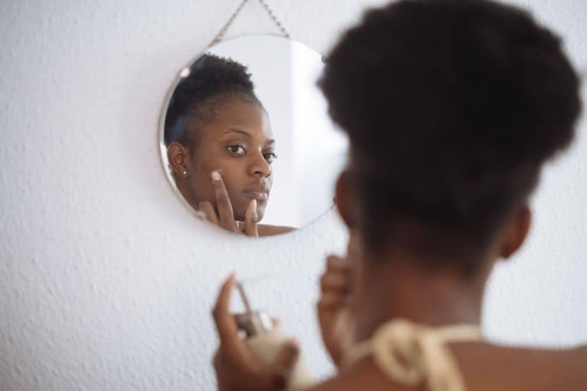 treat hyperpigmentation for black skin