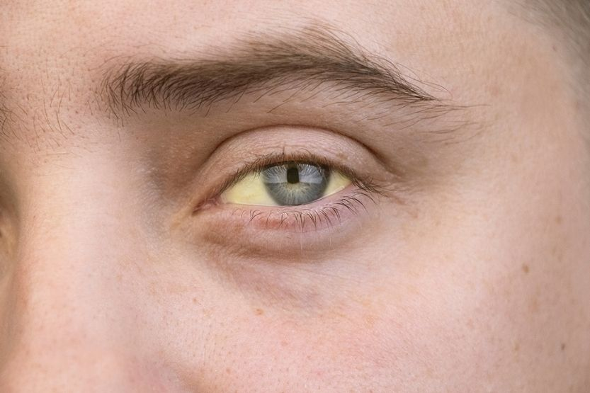 Yellow Skin Tone – Causes and Treatments (Jaundice and More)