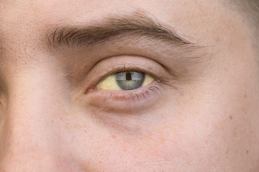 yellow skin tone