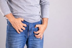 Jock Itch Smell: Causes and Prevention
