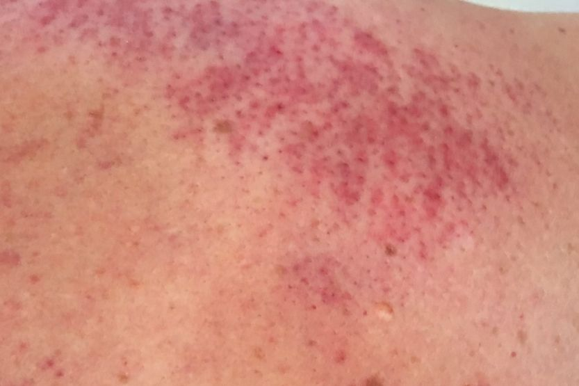 Pinprick Red Dots on Skin Not Itchy